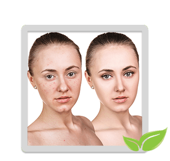Apeel Aesthetics Acne Clinic